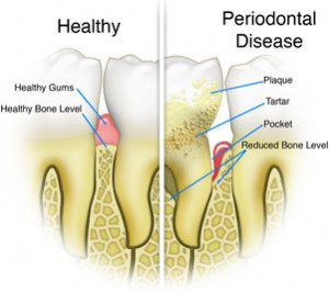 Periodontal treatment Dallas